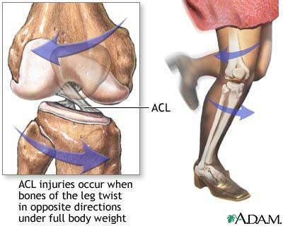 torn acl heal on its own acl damage and treatments