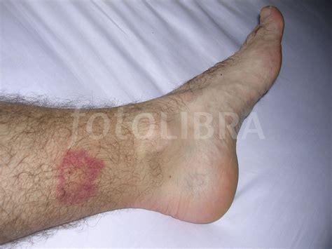biting leg mosquito bites on legs