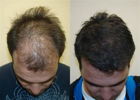 new hair restoration techniques innovative new hair transplant technique provides new hope