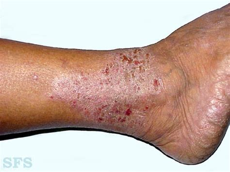 Why Do Legs Itch After Shower by Itchy Legs Causes And Treatment Healthhype