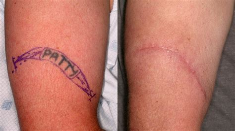 tattoo removal first treatment laser removal surgery and other methods
