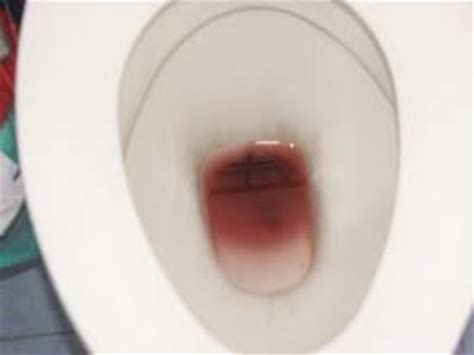 how do if you blood in your stool iythealth