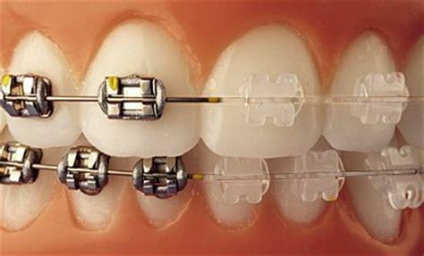 apparecchi dentali mobili studio dentistico schirinzi apparecchi dentali la