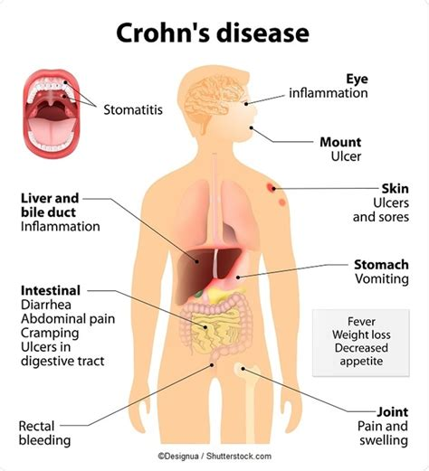 gas x crohns disease history of crohn s disease