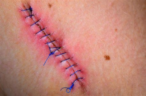how to tell if a suture scar is healing well livestrong com