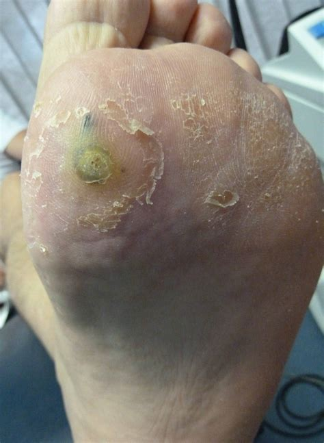 Cure For Planters Wart by Plantar Wart Treatment Brightonpodiatry Au