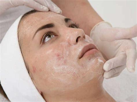 Paket Chemical Soft Peel Acne chemical peel skin care scottsdale arizona spectrum