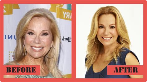 kathie lee gifford is how old kathie lee gifford plastic surgery and death of husband