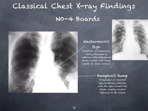 google images x rays pulmonary embolism x ray google search chest pathology