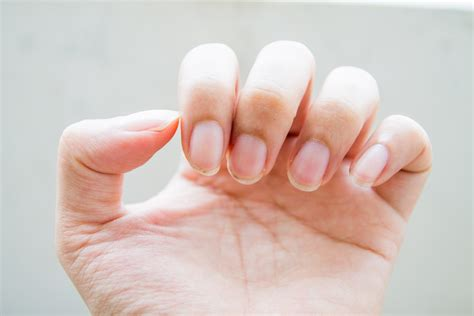 Nail Problems by Nail Problems Related Keywords Nail Problems