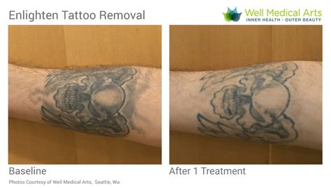 tattoo removal experience removal in seattle using pico technology at well