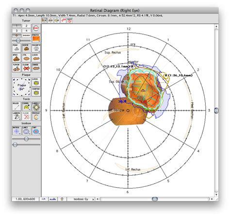 retina diagram retinal diagram window