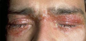 eczema on eyelids swollen itchy eyelid dermatitis