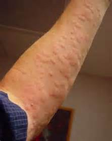 Can stress cause rash and treatment to help allergic reaction