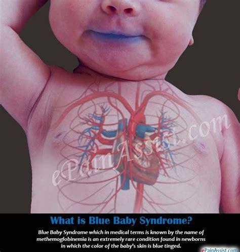 17 best ideas about blue baby on took 17 best ideas about blue baby on took