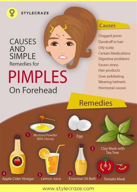 what does having a big forehead mean 10 causes and simple remedies for pimples on forehead