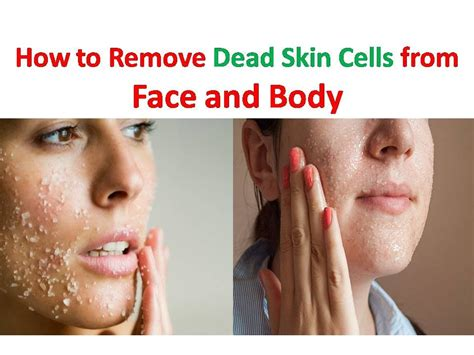 home remedy for dead skin cells how to get rid of dead