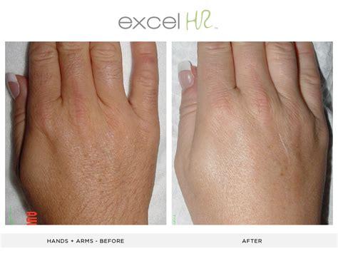 henna tattoo xanten 28 laser hair removal nirvana laser electric