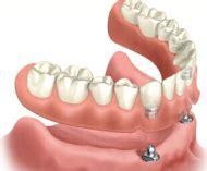 prezzo protesi dentaria mobile protesi mobili listino dei prezzi odontoiatrici tour