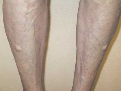 lump on s leg swollen lump like on leg after running runners forum