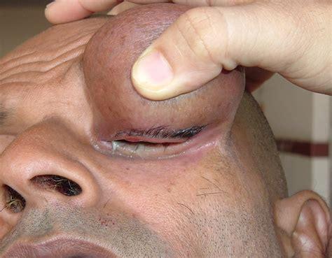 cyst on s eyelid eyelid dermoid cyst كيسة جلدانية على الجفن