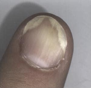 Motix Air Toe Black White the black your toenails is this fungus amoils