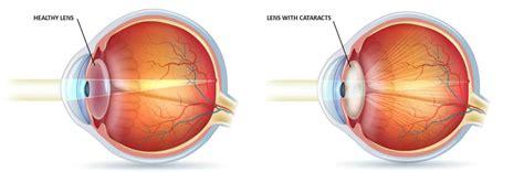 cataract surgery diagram cataract surgery treatment avc harley w1