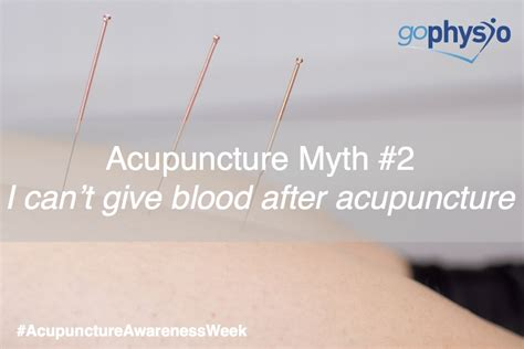 can i donate blood if i have a tattoo acupuncture myth 2 quot i can t give blood if i ve had