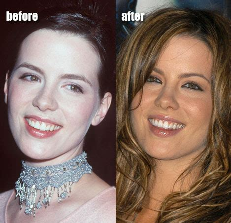 Next Facelift For Your Teeth 2 by Chatter Busy Kate Beckinsale Plastic Or Cosmetic Surgery