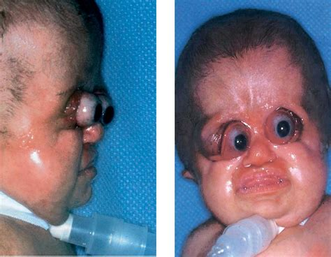 Pfeiffer Disease Pictures