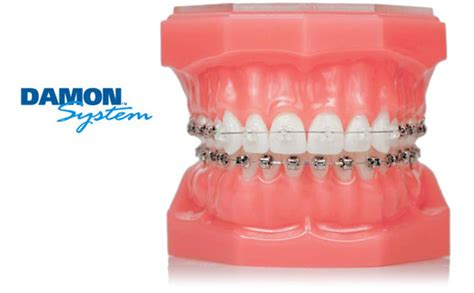 comfort dental braces cost clear braces brandon orthodontist dr jeffrey bales