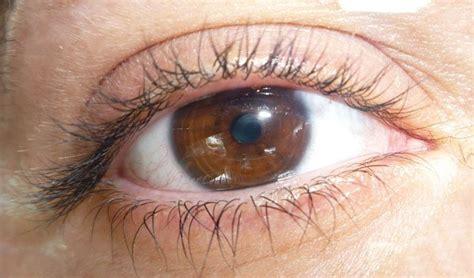 imagenes de ojos normales ojo normal