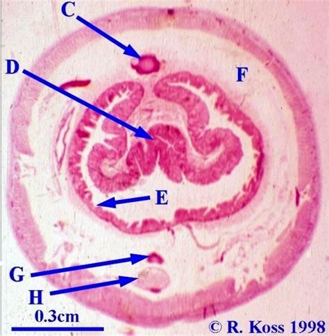 labeled earthworm cross section image gallery lumbricus cross section