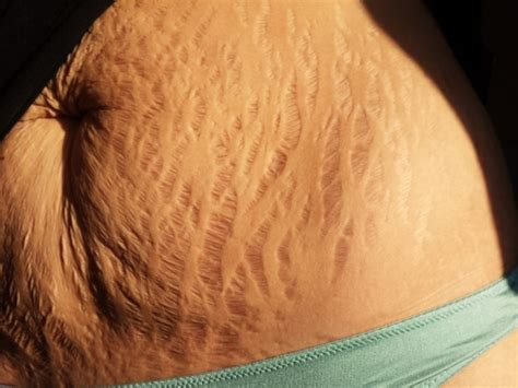 heavy hair on vigina love your lines stretch marks go viral in support of