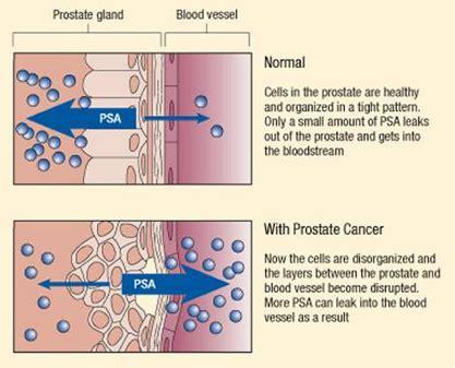 test psa psa test screening for cancer overview