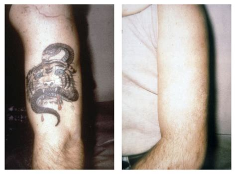 tattoo removal offers offers sales promotions centrepointe laser clinic