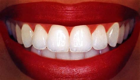 Mba After Bds In Canada by Teeth Whitening Laser Technique Home Based Teeth