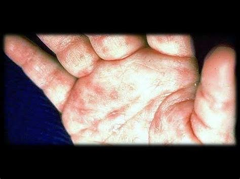 itching at night in bed 16 best images about what is scabies how do you get rid