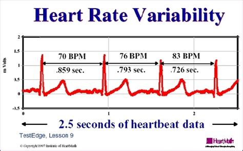 pattern of heart rate variability sfwork meanings affect the heart