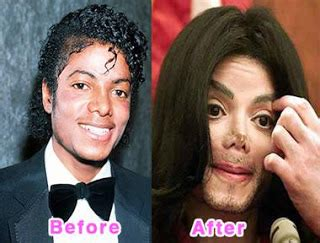 what was wrong with michael jackson famous celebrity plastic surgery gone wrong and bad
