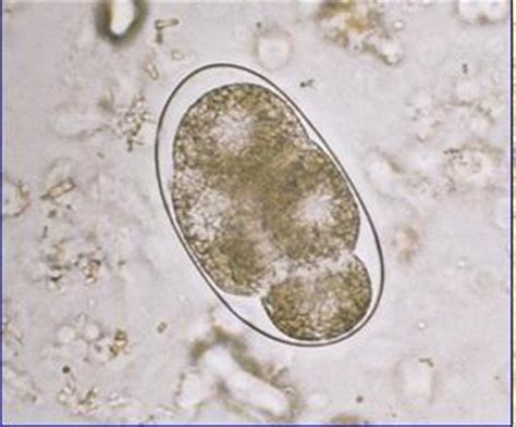 Hookworm Eggs In Stool by Parasitology Lecture 1 At Of New Orleans