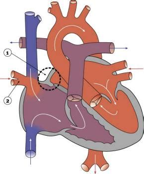 warden procedure diagram province of mb the pcsir ch 2 partial anomalous