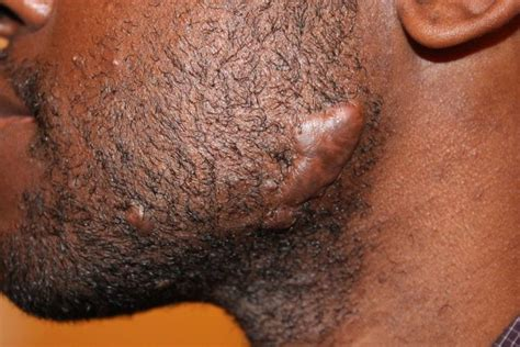 tattoo cause keloid awesome see how these 17 remedies may help you get rid of