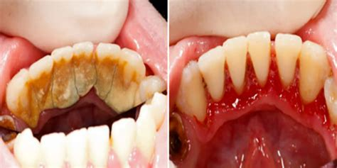 how to clean your s teeth be your own dentist and learn how to clean tartar on teeth