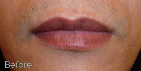 oregon tattoo removal lip laser removal removal