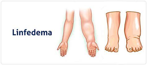 vasi linfatici gambe linfedema