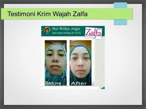 Pemutih Zalfa by Wa 0857 2571 6648 Harga Jual Pemutih Wajah Zalfa Aman
