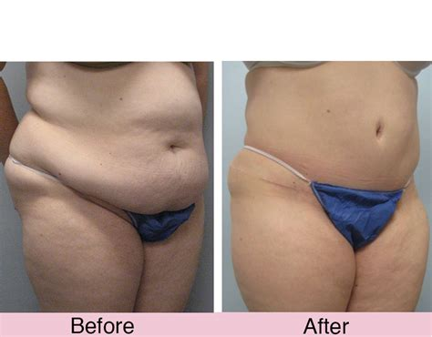tummy tuck after c section canada tummy tuck imagine plastic surgery imagine plastic surgery