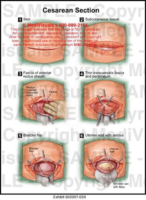 C Section Procedures by Cesarean Section Illustration Medivisuals