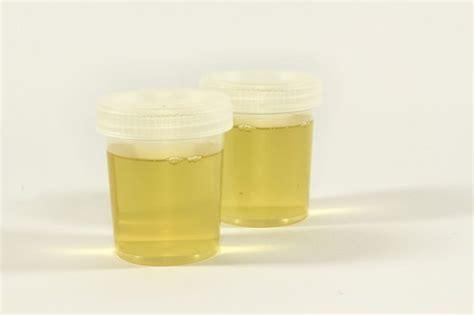 u protein in urine proteinuria protein in urine in children symptoms
